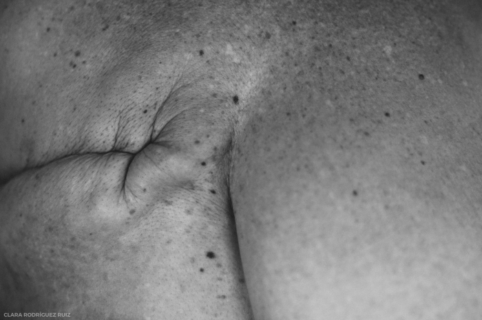 La cicatriz